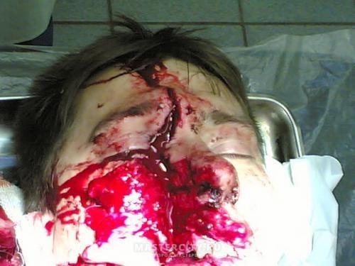 Без ТБ. Смерть от болгарки - фото 11